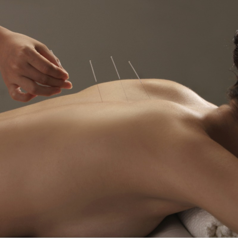 800x800_acupuncture